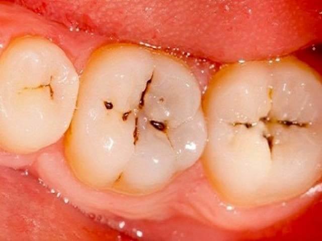 فرسایش مینای دندان | نخ دندان مینا