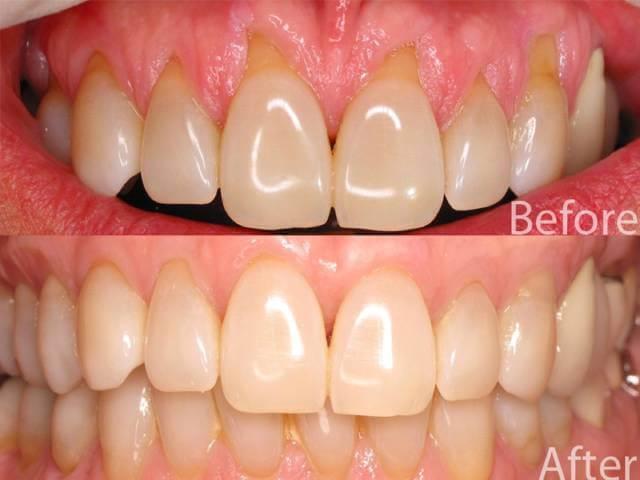 جراحی پیوند بافت لثه | نخ دندان مینا