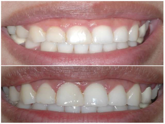 بلند کردن تاج دندان با جراحی | نخ دندان مینا