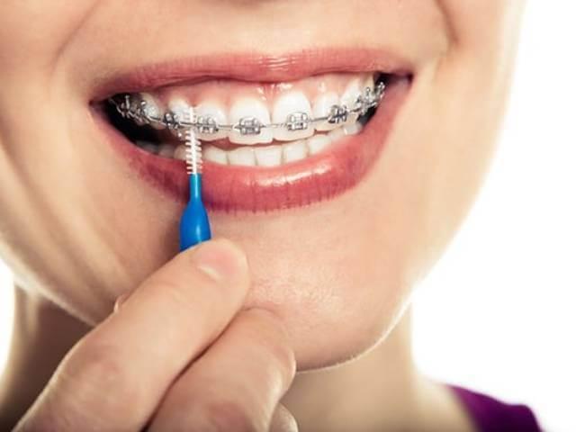 استفاده از مسواک ارتودنسی برای تمیز کردن دندان ارتودنسی شده | نخ دندان مینا