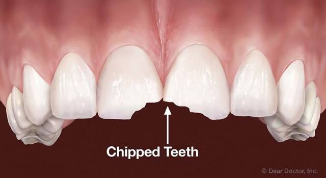 شکستن و ترک برداشتن دندان یکی از دلایل حساسیت دندان | نخ دندان مینا