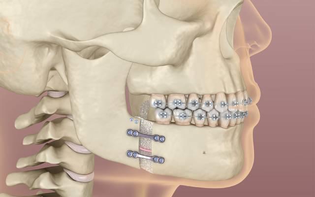 ارتودنسی دندان و جراحی ارتوگناتیک | نخ دندان مینا