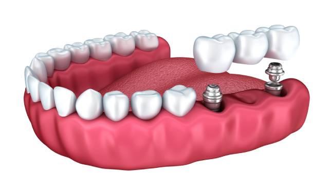 ایمپلنت دندان | نخ دندان مینا