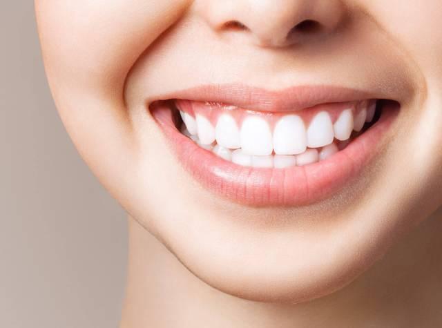 انجام سفید کردن یا بلیچینگ دندان | شرکت نخ دندان مینا