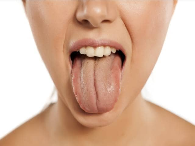 درباره ی بیماری زبان اسکالوپ یا موجدار | شرکت نخ دندان مینا