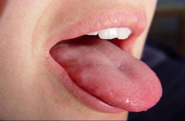 عوارض بیماری زبان موجدار | شرکت نخ دندان مینا