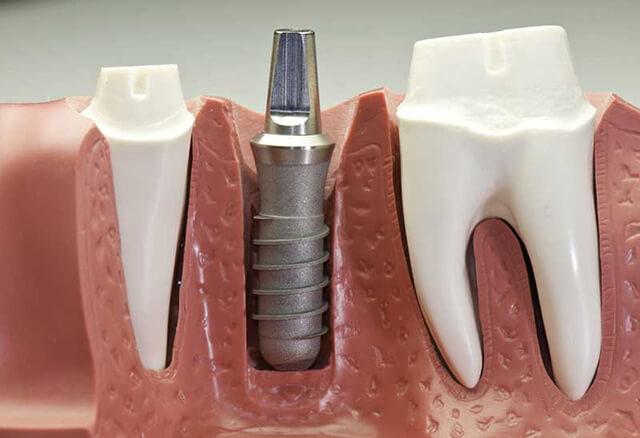 انواع مختلف ایمپلنت دندان | نخ دندان مینا