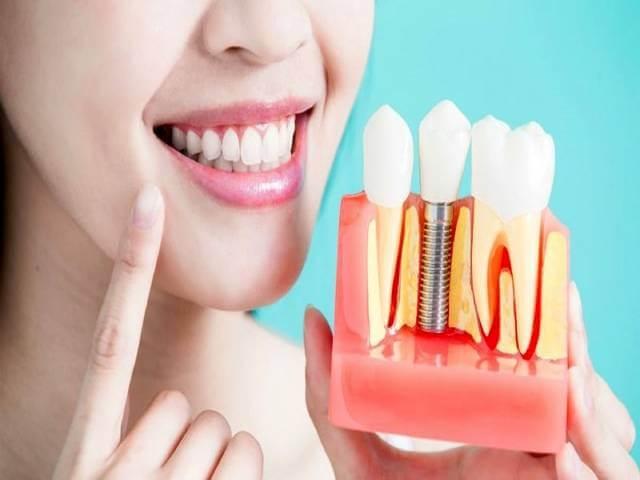 پس زدن ایمپلنت دندان | شرکت نخ دندان مینا