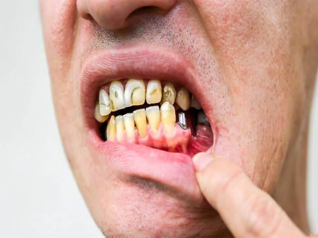 پس زدن ایمپلنت دندان و شکست درمان | شرکت نخ دندان مینا