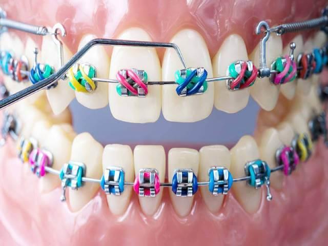 تاثیر نوع تجهیزات در مدت زمان ارتودنسی   شرکت نخ دندان مینا