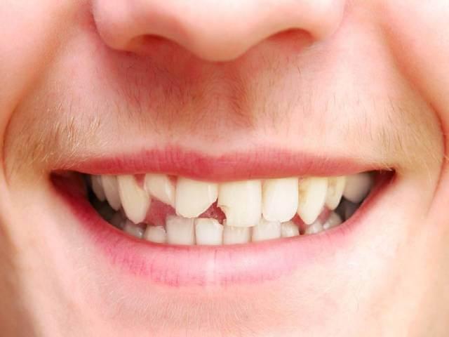 شکستگی دندان و روش های درمان آن | شرکت نخ دندان مینا