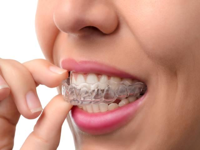 آشنایی با ریتینر ارتودنسی | شرکت نخ دندان مینا