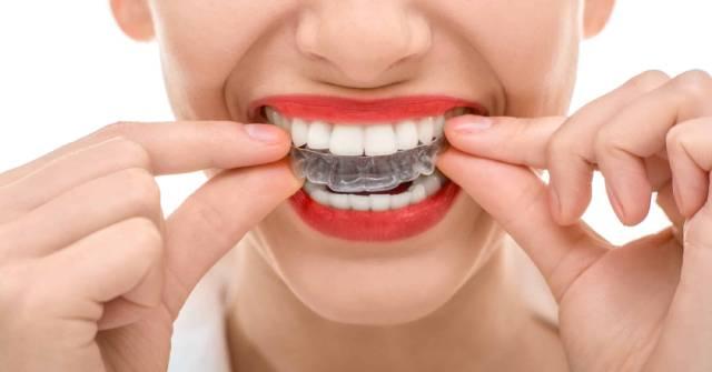 نگهداری از ریتینر ارتودنسی | شرکت نخ دندان مینا