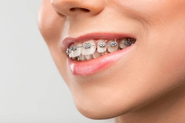 کاربرد بریس ارتودنسی | شرکت نخ دندان مینا