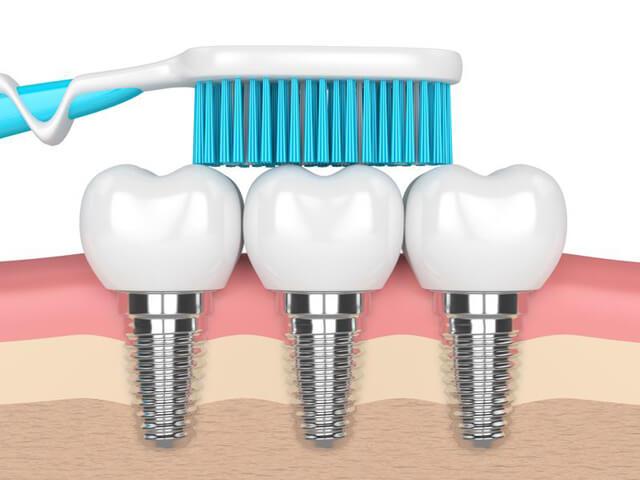 مسواک زدن ؛ یکی از راه های مراقبت از دندان ایمپلنت شده | نخ دندان مینا