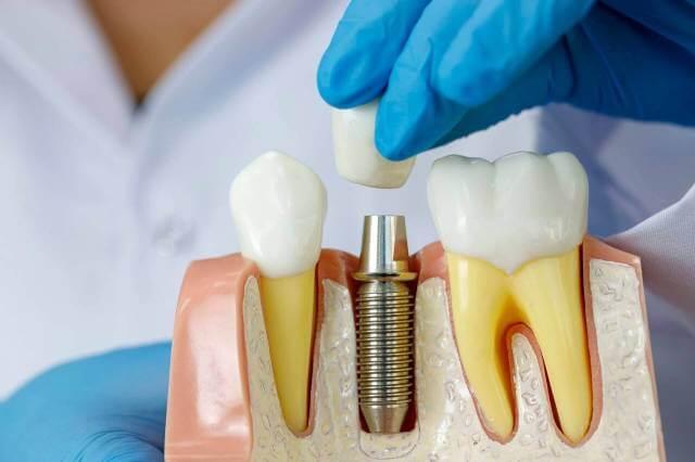 تجربه پزشک در جراحی ایمپلنت دندان | شرکت نخ دندان مینا