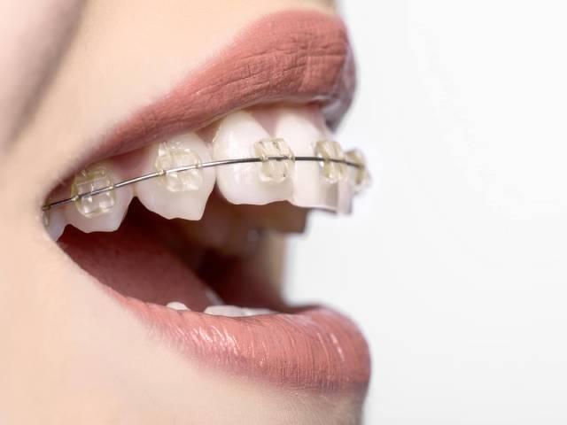 مدت زمان ارتودنسی دندان   شرکت نخ دندان مینا