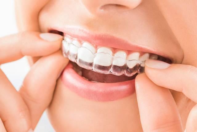 ارتودنسی نامرئی با پلاک شفاف و بدون سیم کشی | شرکت نخ دندان مینا