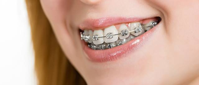 عملکرد بریس ارتودنسی | شرکت نخ دندان مینا