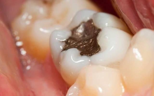 مضرات آمالگام دندانی   شرکت نخ دندان مینا