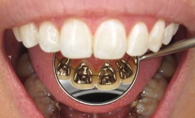 ارتودنسی لینگوال چیست| شرکت نخ دندان مینا