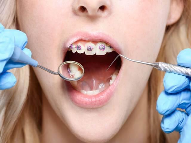 روش انجام ارتودنسی تک دندان | شرکت نخ دندان مینا