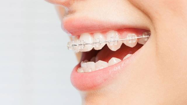 براکت سرامیکی | شرکت نخ دندان مینا
