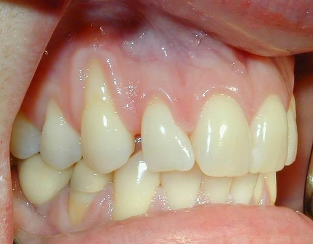 تحلیل لثه چیست؟ | شرکت نخ دندان مینا