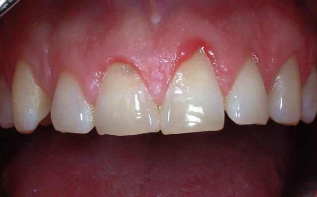 تحلیل لثه | شرکت نخ دندان مینا