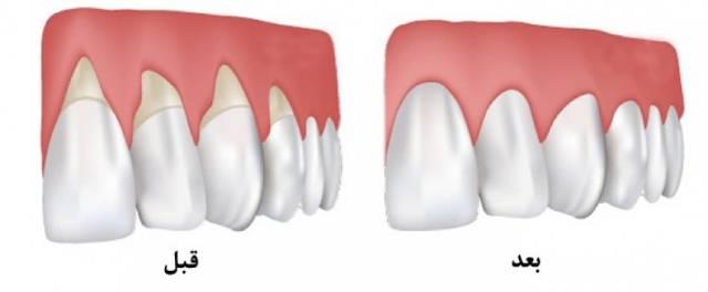 عقب نشینی لثه | شرکت نخ دندان مینا