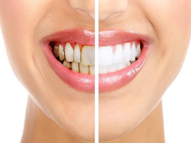 روش درمان عقب نشینی یا تحلیل لثه چیست؟ | شرکت نخ دندان مینا