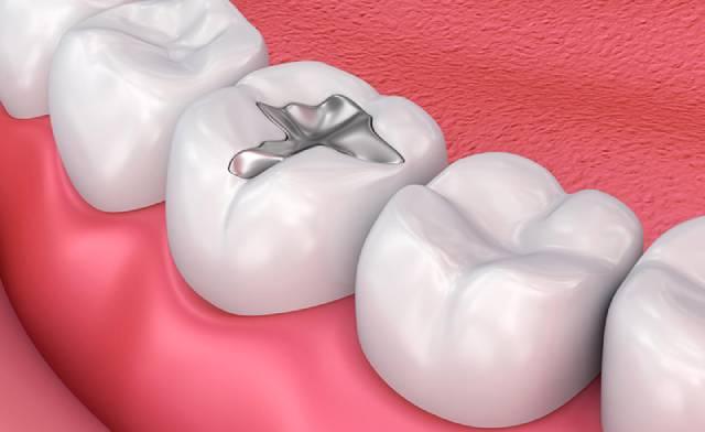 آمالگام دندان | شرکت نخ دندان مینا