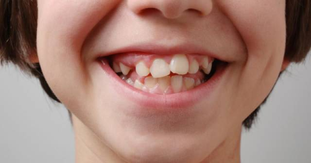 چه زمانی نیاز به ارتودنسی تک دندان داریم | شرکت نخ دندان مینا