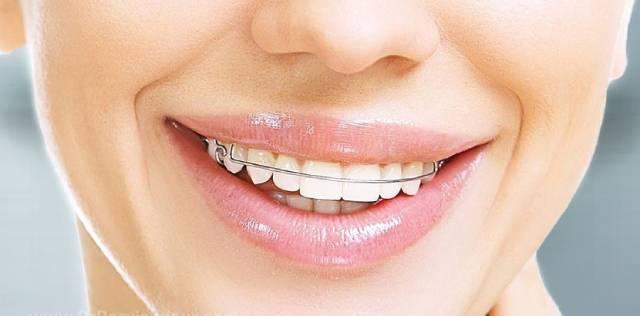 بریس فانکشنال | شرکت نخ دندان مینا