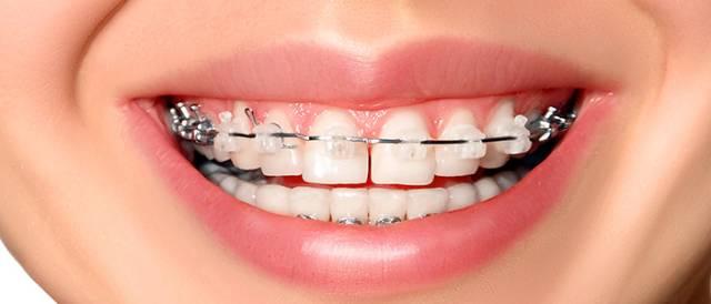 ارتودنسی سرامیکی | شرکت نخ دندان مینا