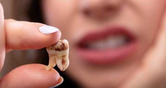 علت درونی سیاه شدن دندان | شرکت نخ دندان مینا
