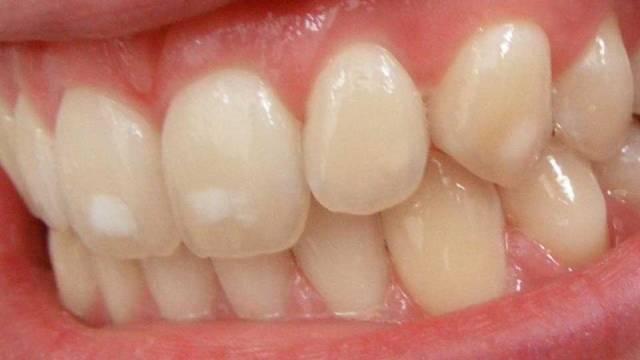 لکه های سفید دندان | شرکت نخ دندان مینا