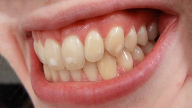 علت رنگی شدن دندان | شرکت نخ دندان مینا