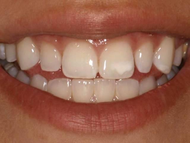 لکه های سفید دندان و راه درمان آن | شرکت نخ دندان مینا