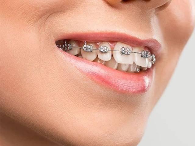 | شرکت نخ دندان مینا