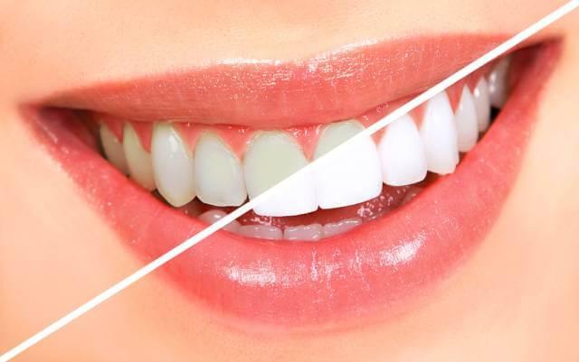سفید کردن دندان ها | شرکت نخ دندان مینا