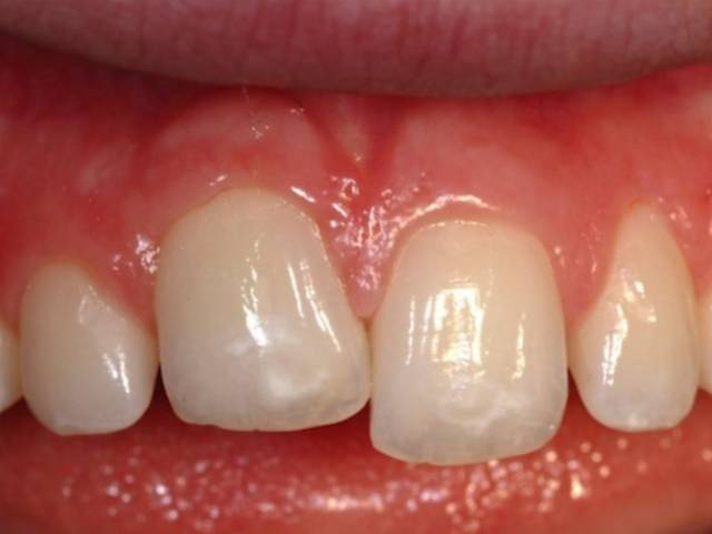 انکیلوز دندان چیست؟ | شرکت نخ دندان مینا