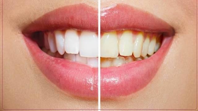 مزایای خمیردندان زغالی | شرکت نخ دندان مینا