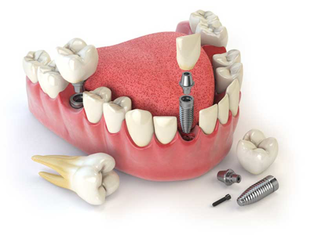 بررسی اجزای مختلف ایمپلنت دندان و کاربرد آن ها | شرکت نخ دندان مینا