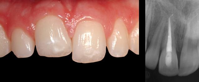 تشخیص دندان انکیلوز | شرکت نخ دندان مینا