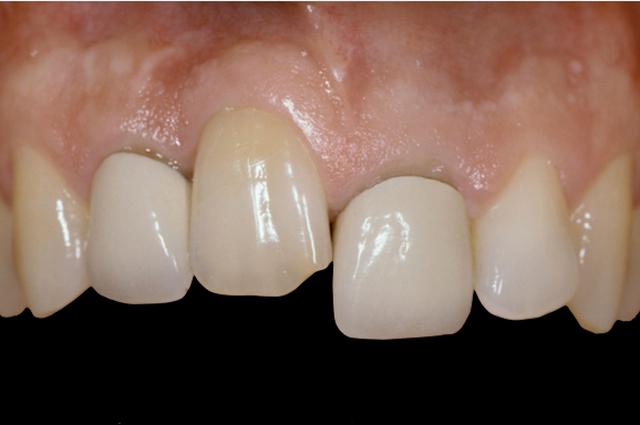 شایع ترین علل انکیلوز دندان | شرکت نخ دندان مینا