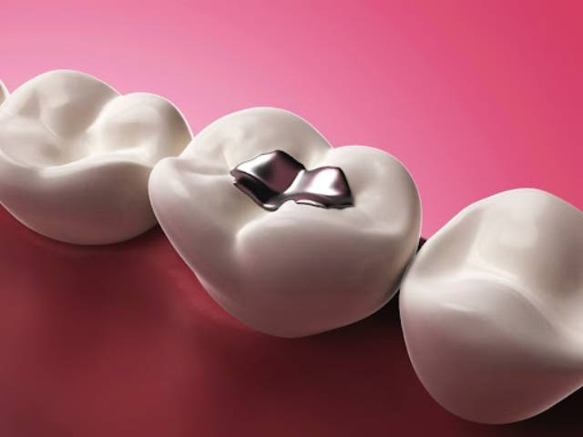 تفاوت کامپوزیت با آمالگام   شرکت نخ دندان مینا