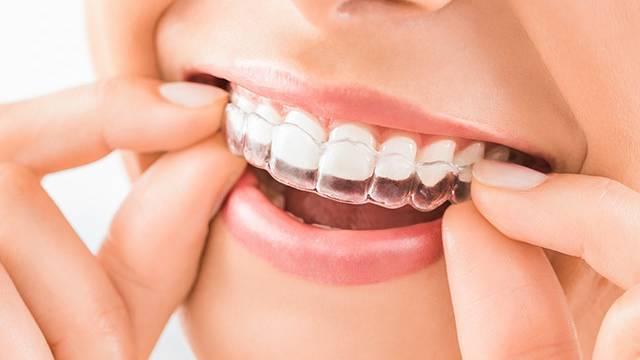 انواع گارد نایت | شرکت نخ دندان مینا