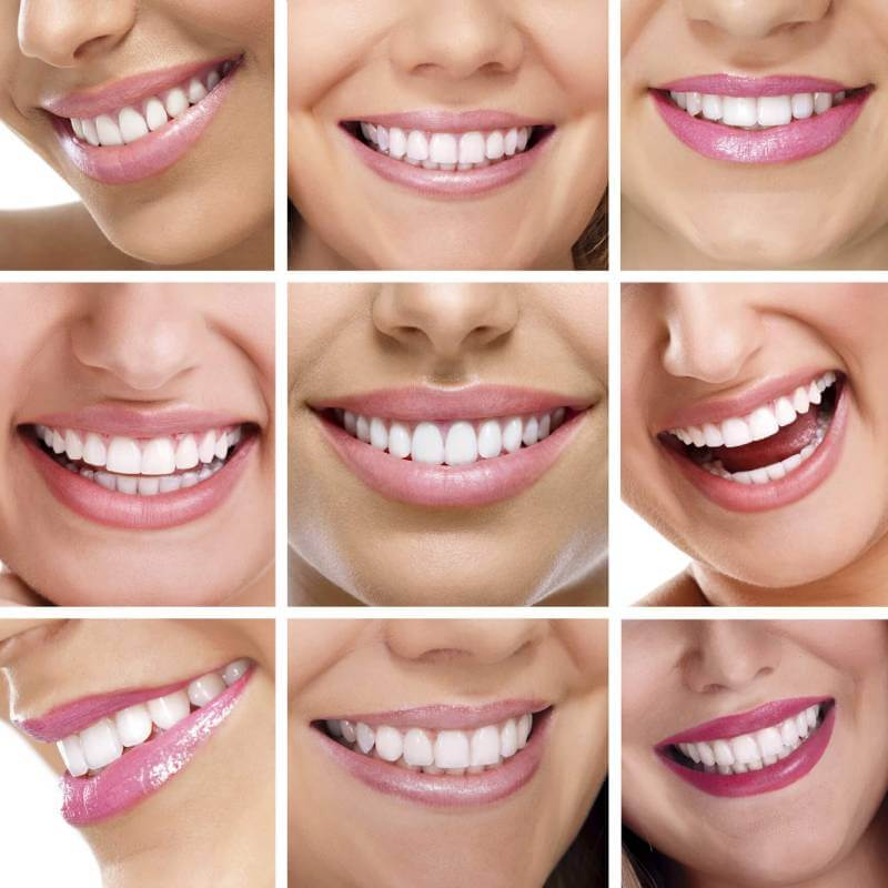 لمینت دندان | شرکت نخ دندان مینا