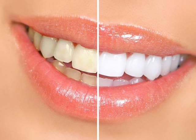 مزایا قلم سفید کننده دندان | شرکت نخ دندان مینا
